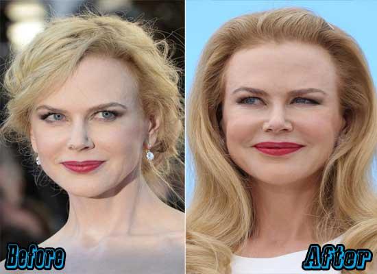 Nicole Kidman Plastic Surgery Pictures
