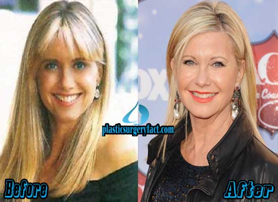 Olivia Newton John Before and After Plastic Surgery