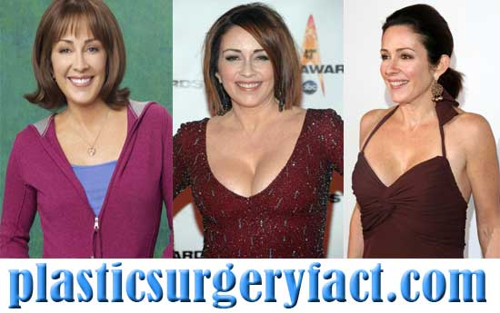 Patricia Heaton Boob Job Before and After