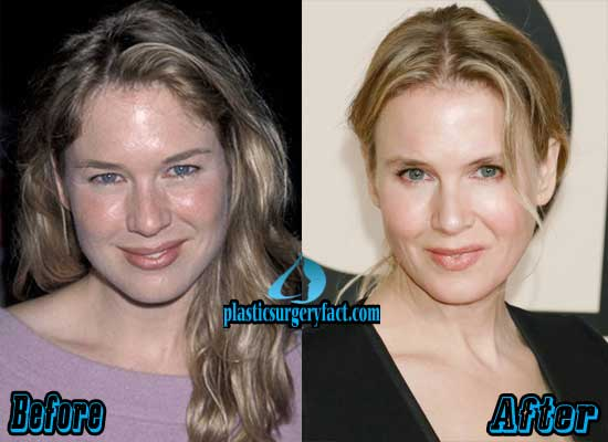 Renee Zellweger Before and After Plastic Surgery