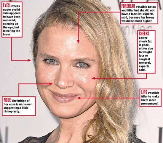 Renee Zellweger Plastic Surgery Procedures