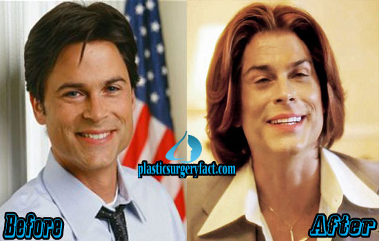 Rob Lowe Plastic Surgery Face