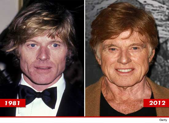 Robert Redford Before and After Plastic Surgery