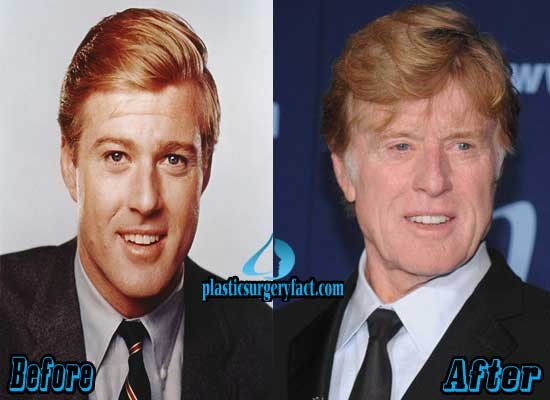 Robert Redford Before and After