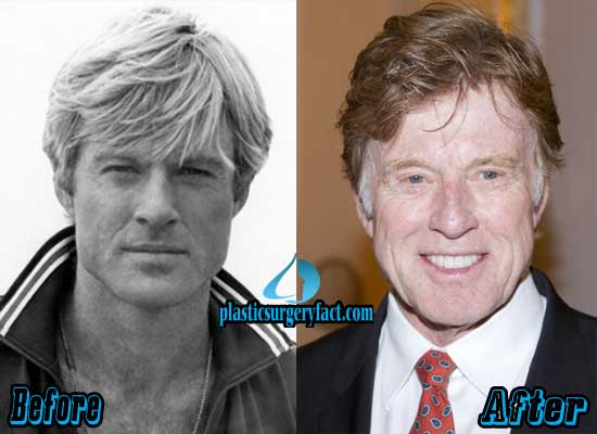 Robert Redford Plastic Surgery Before and After