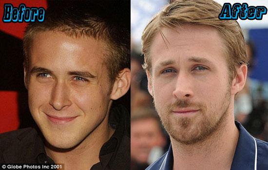 Gosling Nose Job