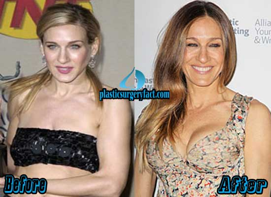 Sarah Jessica Parker Boob Jobs Before and After