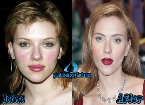 Scarlett Johansson Rhinoplasty Surgery