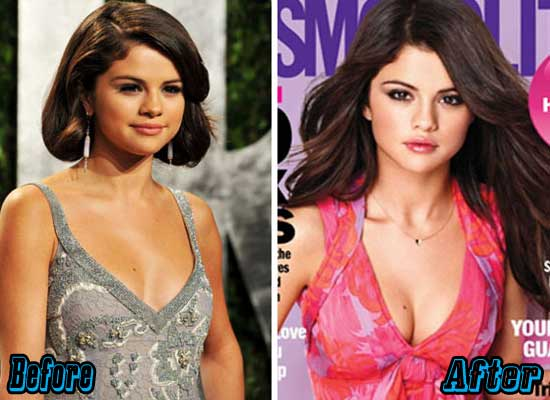 Selena Gomez Boob Job Before and After