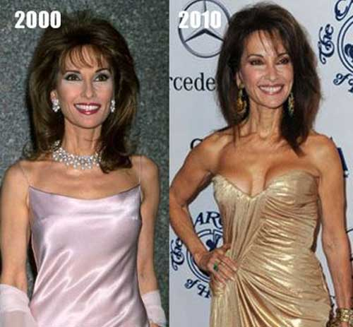 Susan Lucci Breast Augmentation Before After