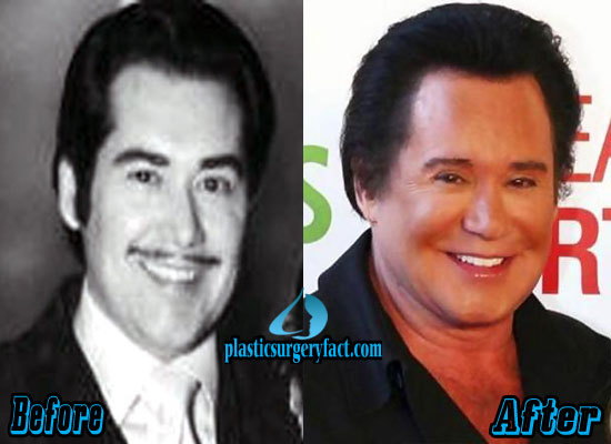 Wayne Newton Before and After Facelift