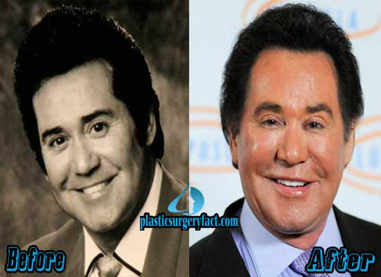 Wayne Newton Facelift Before and After