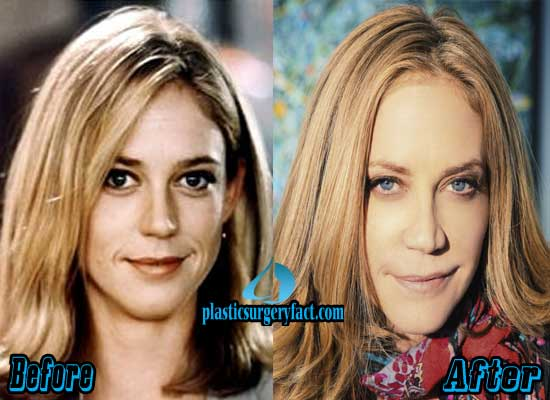 Ally Walker Surgery