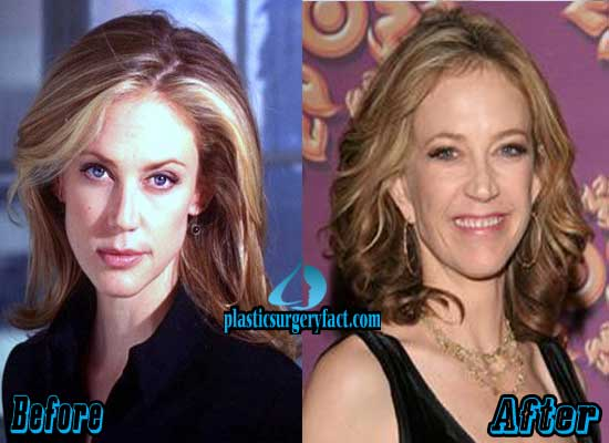 Ally Walker Plastic Surgery Before and After Pictures
