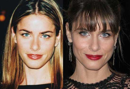 Amanda Peet Before and After Plastic Surgery