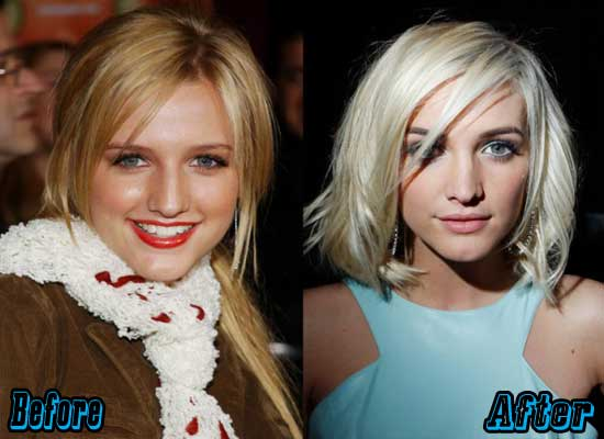 Ashlee Simpson Plastic Surgery Before After