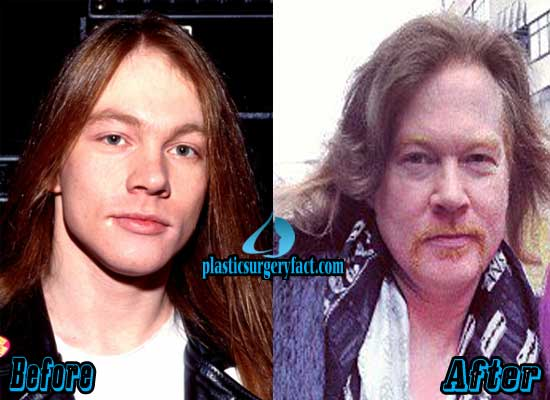 Axl Rose Before and After Plastic Surgery
