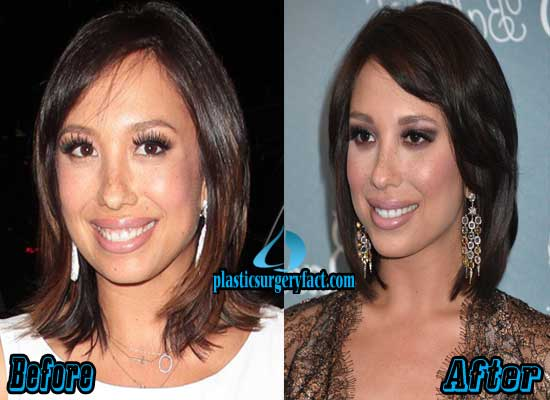 Cheryl Burke Nose Job Before and After