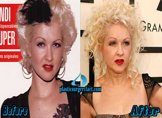 Cyndi Lauper Before and After Photos