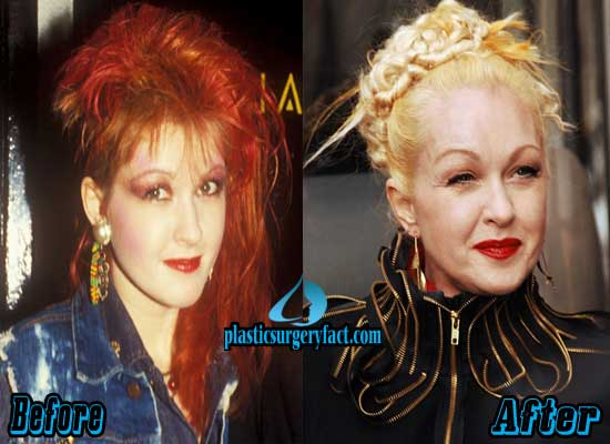 Cyndi Lauper Before and After Plastic Surgery