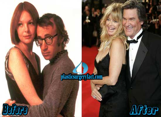 Diane Keaton Breast Implants Before and After