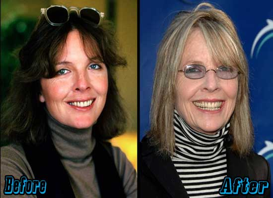 Diane Keaton Facelift Before and After