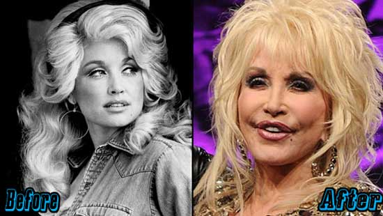 Dolly Parton Extreme Plastic Surgery