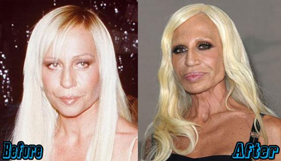 Donatella Versace Extreme Plastic Surgery