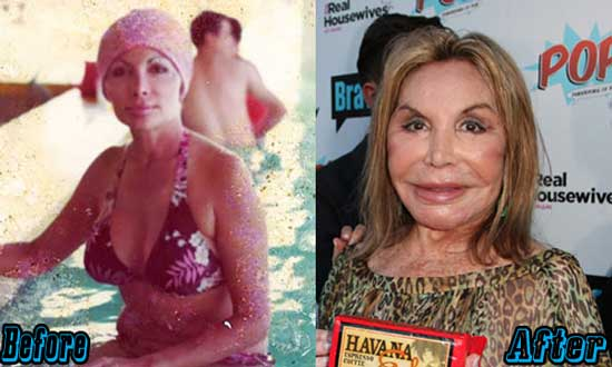 Elsa Patton Extreme Plastic Surgery