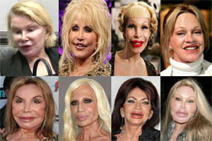Top 10 Extreme Plastic Surgery Before And After Plastic