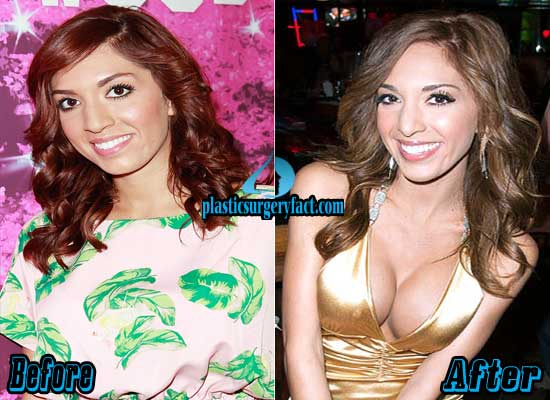 Farrah Abraham Boob Job Before and After