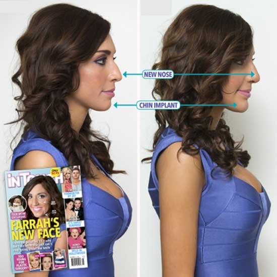 Farrah Abraham Plastic Surgery Procedures