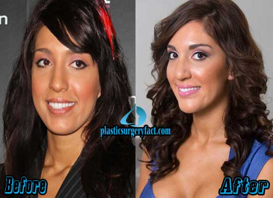 Farrah Abraham Rhinoplasty Surgery Before and After