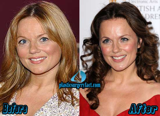 Geri Halliwell Plastic Surgery Before After