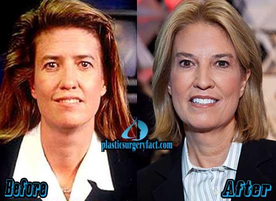 Greta Van Susteren Plastic Surgery Before After