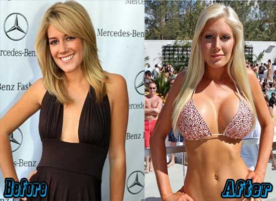 Heidi Montag Worst Plastic Surgery