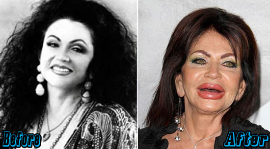 Jackie Stallone Extreme Plastic Surgery