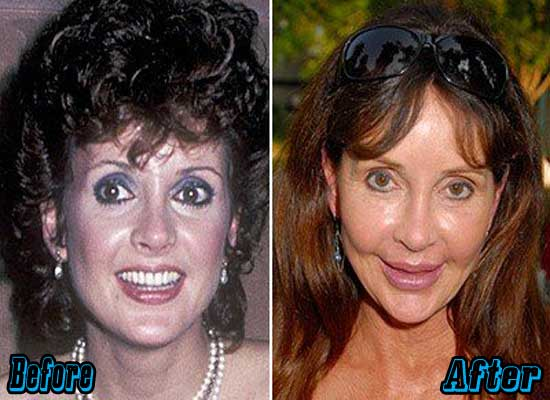 Jacklyn Zeman Plastic Surgery Before and After