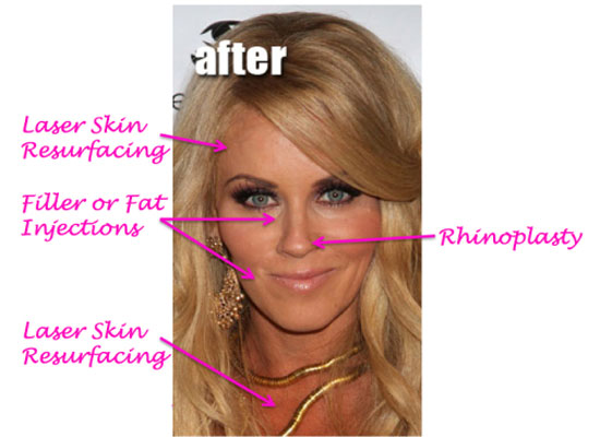 Jenny Mccarthy Plastic Surgery Procedures