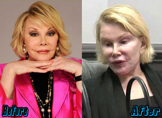 Joan River Extreme Plastic Surgery