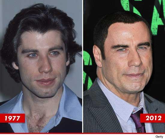 John Travolta Worst Plastic Surgery