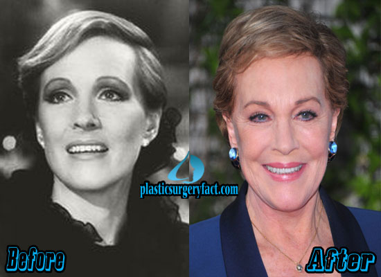 Julie Andrews Before and After Plastic Surgery
