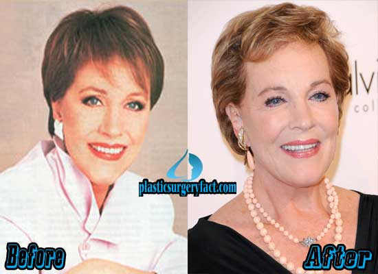 Julie Andrews Plastic Surgery Before and After