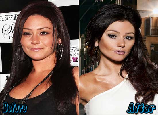 Jwoww Before and After Plastic Surgery
