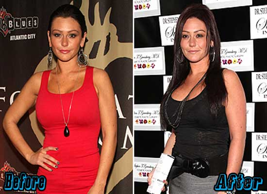 Jwoww Breast Augmentation Before and After
