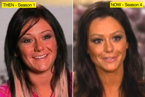 Jwoww Worst Plastic Surgery
