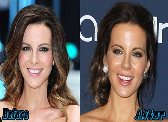Kate Beckinsale Plastic Surgery Pictures