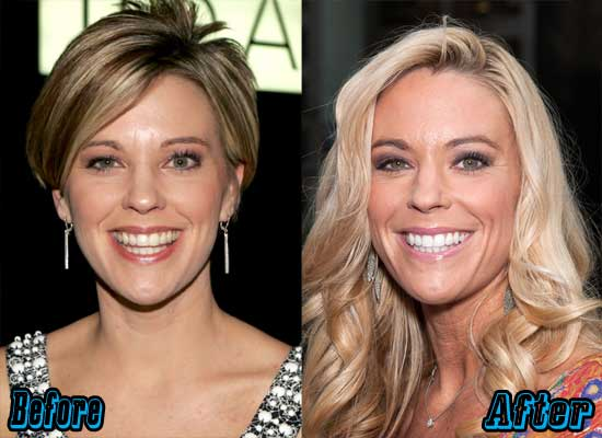 Kate Gosselin Before and After Plastic Surgery