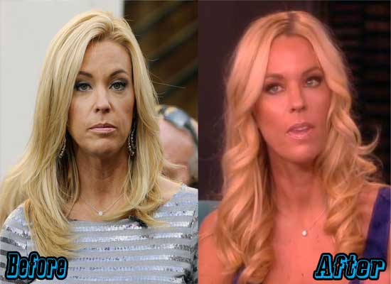 Kate Gosselin Plastic Surgery Photos