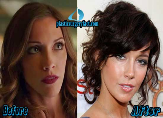 Katie Cassidy Nose Job Before and After
